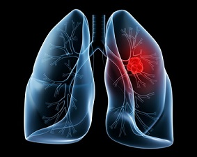 Центральный рак лёгкого